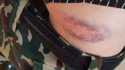 Nepal Army opens investigation into case of captains thrashing soldier…